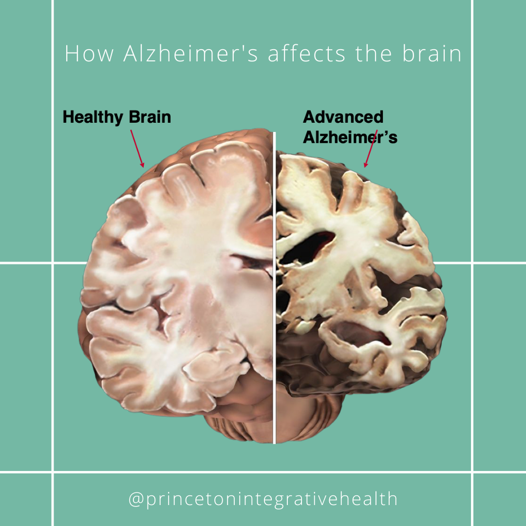 Alzheimer's Disease and Brain Health Awareness Month